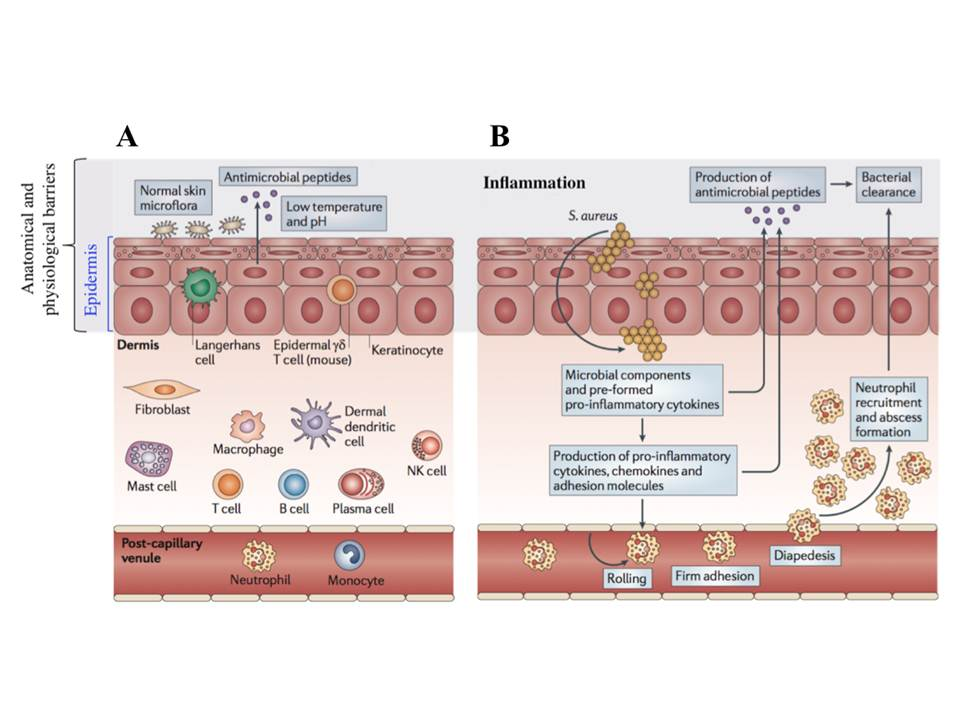 Different levels of innate immunity : an example of skin infection by Staphylococcus aureus